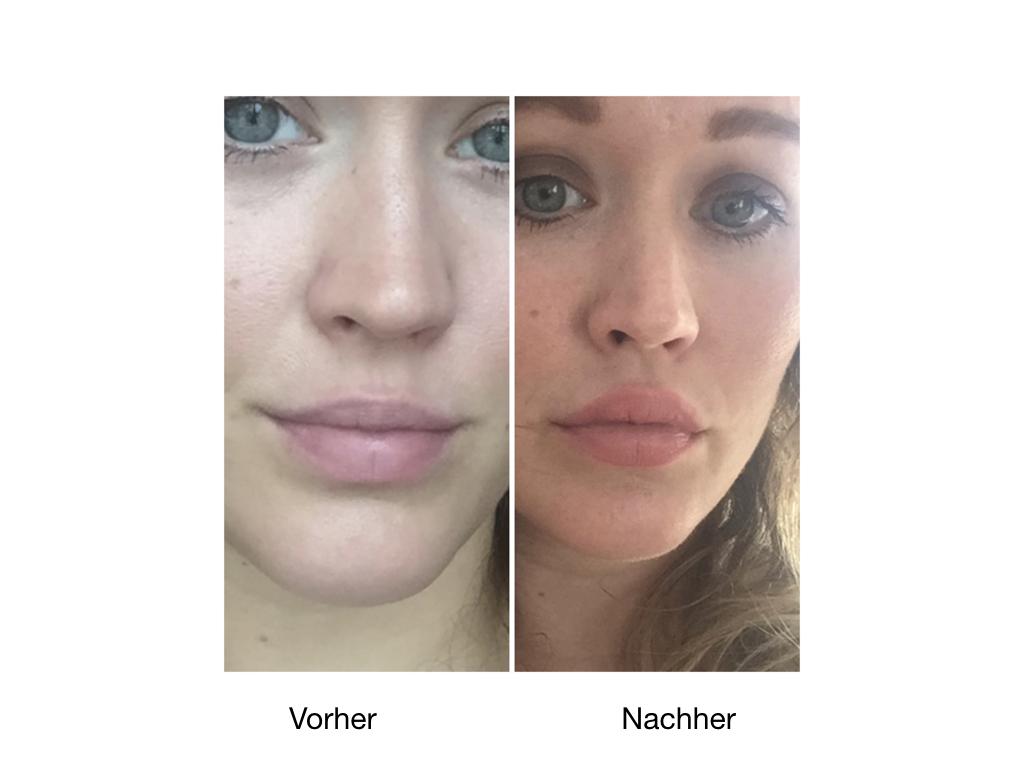 Vorher-NachherBilder einer Lippenunterspritzung mit Hyaluronsäure.