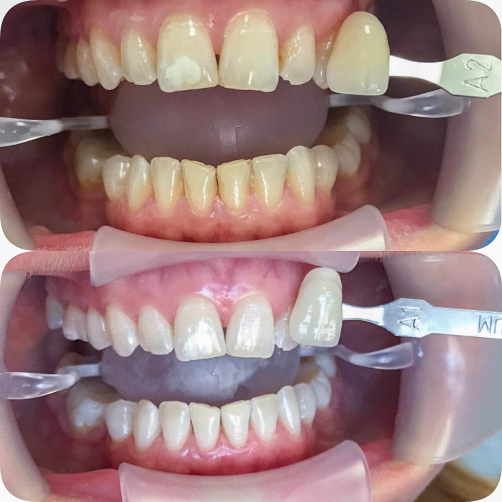 Das Ergebnis vom getesteten Bleaching gegen gelbe Zähne beo ready to smile.