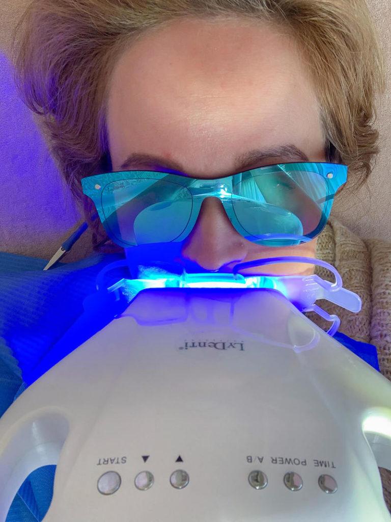 Jen beim Bleaching. Sie testet ein professionelles Zahnbleaching gegen gelbe Zähne.