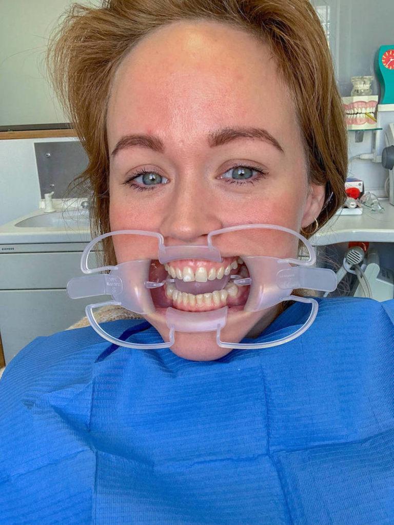 Jen hat die Mundschiene drin für das Zahnblleaching welches sie gleich testet.
