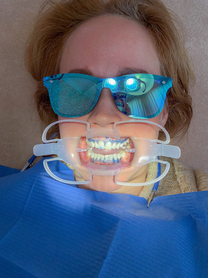 Jen testet ein professionelles Zahnbleaching beo ready to smile. Sie möchte ihre gelben Zähne loswerden.